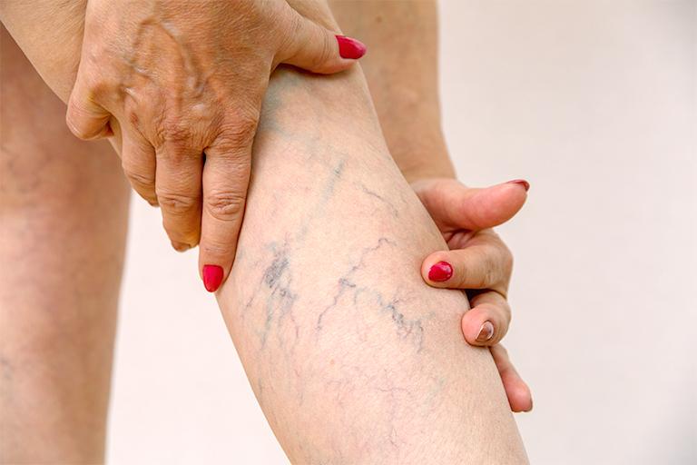 elderly woman with spider veins